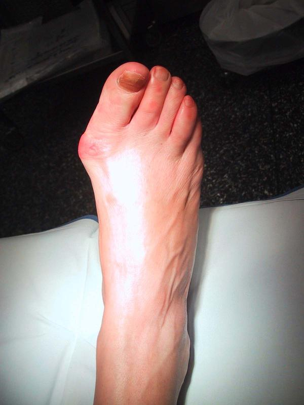 Can a bunion make it hard to point your toes?