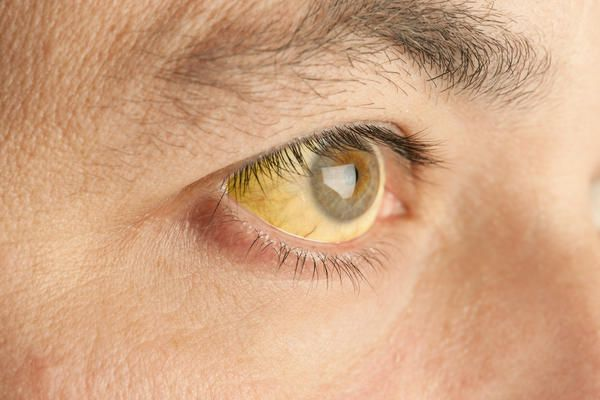 What are the symptoms for jaundice?