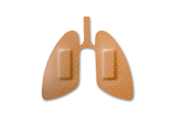 What causes hemoptysis in pulmonary embolism and how long last?
