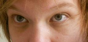 How to get rid of hereditary dark circles under eyes?