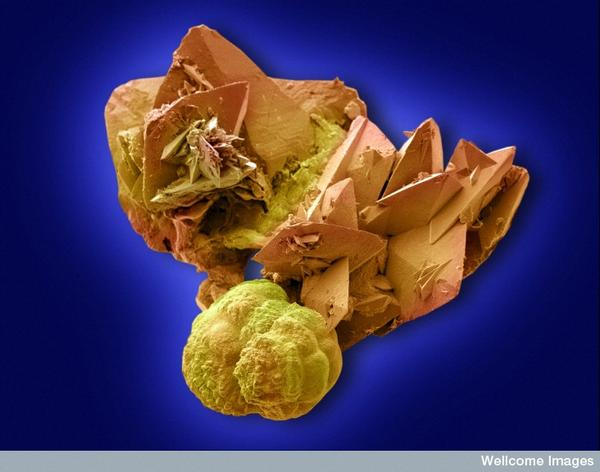 What causes kidney stones ?  Is it in the genes or diet