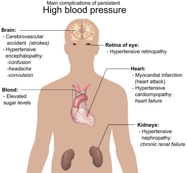 How can cigarette smoking can lead to hypertension?