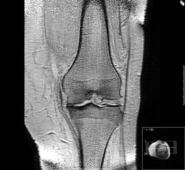 85 year old  torn meniscus in right knee,  pain/inflammation when walking.  Recommend hyaluronic acid joint injection? Other non-surgical therapies?