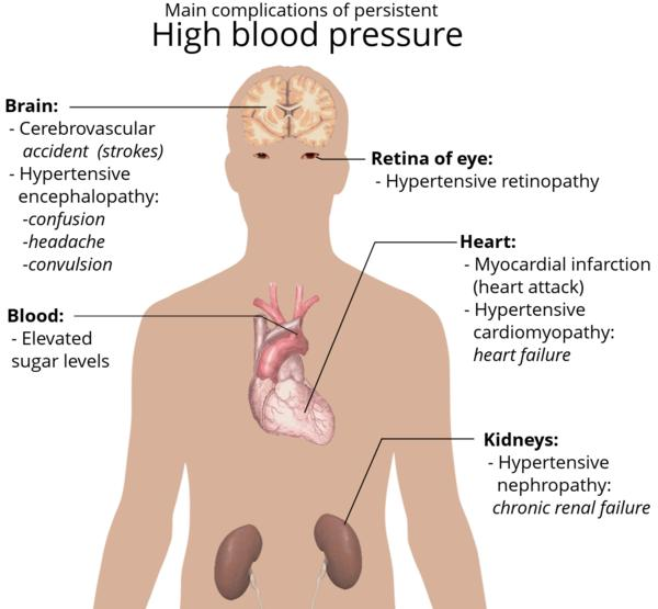 Does high blood pressure affect the possibility of bronchitis?