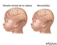 Microcephaly: born at 35wk, is 10mos now. Hgt, wgt 10th, head 2nd percentile, all since birth. Can he catch up? Any issues if he remains on this curve