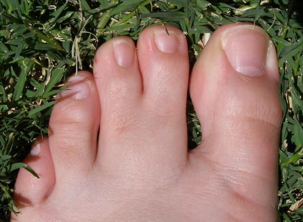 What causes webbed toes?
