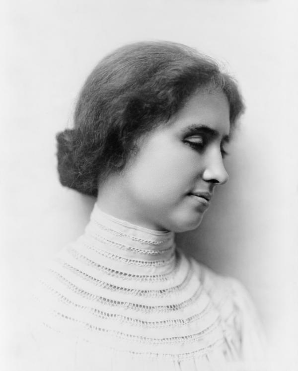 Did helen keller have usher syndrome?