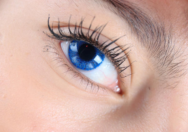 How can you permanently cure staph blepharitis?