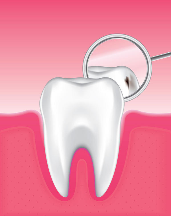 How do I know if my 3 year old has a cavity?