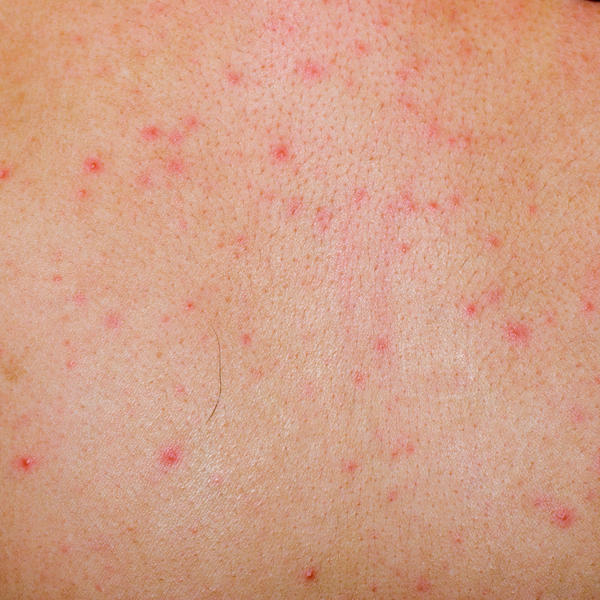 What could be causing me to have an allergic skin rash in my own swimming pool but not in others?