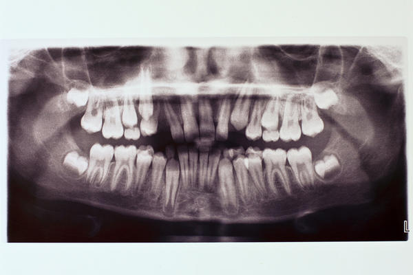 The gums near my left wisdom tooth is swollen and spit hurts. What's wrong?