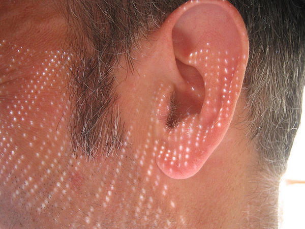 What causes tinnitus that develops over decades?