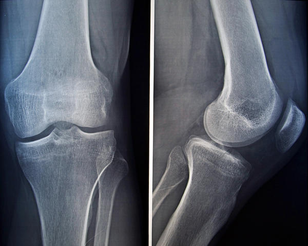 How long will it take for a fractured knee to heal?