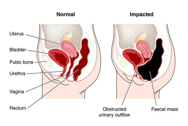 How can you tell if you are experiencing intestinal blockage or just constipation?