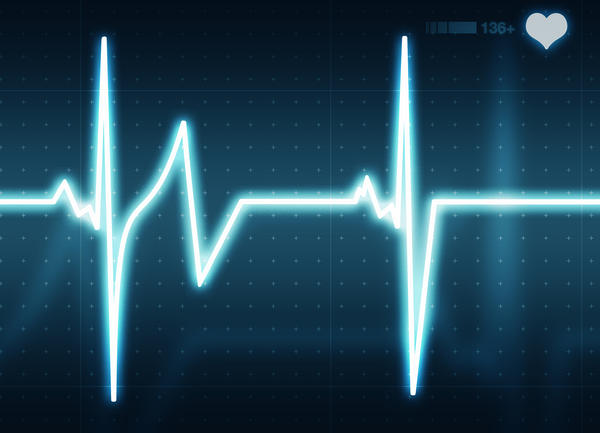Could an episode of a fib have a strong heart beat.?