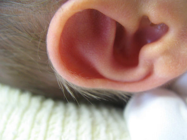 How does a dr see fluid in inner ear due to sinuses?