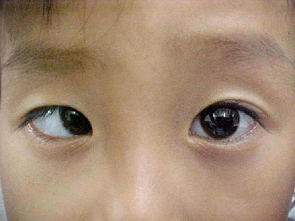 This cross eye aka strabismus/wandering eye symptom?