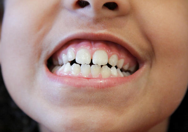 Are there any side effects from 35% carbamide peroxide to whiten your teeth?