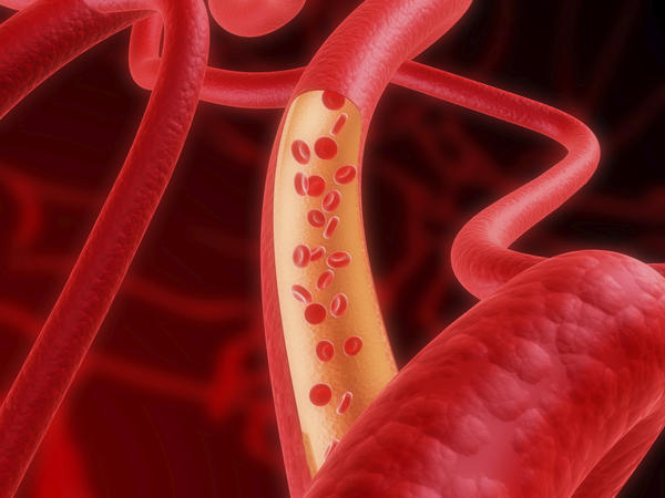 What can cause dark blood and blood  clots in stool?