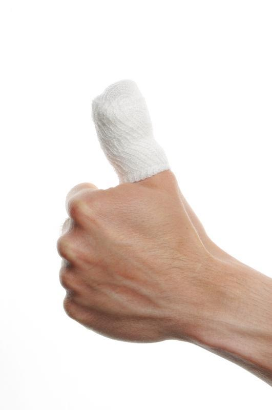 What could you do to help a broken thumb?