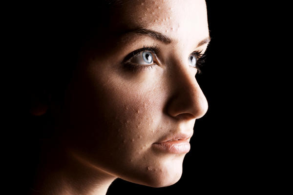 How can I get rid of acne scars and visible pores naturally?