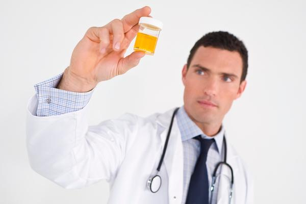 Does dark yellowish/ orangish urine always indicate hematuria (blood in the urine)?