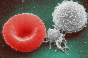 What causes hematologic cancers of the blood?