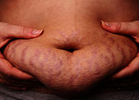 When do stretch marks occur?