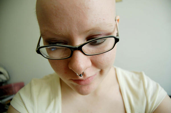 Is it possible for a female to suffer from baldness?