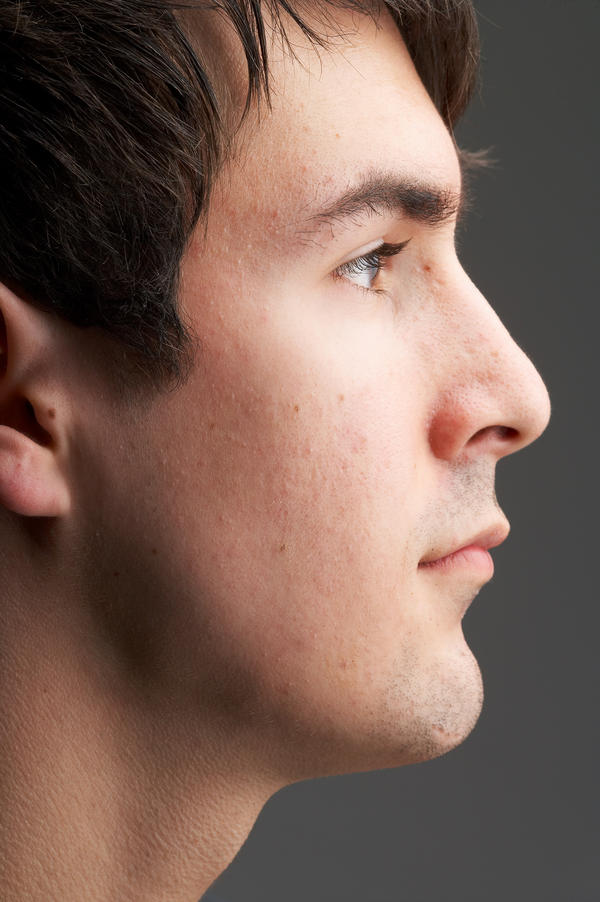 Which pinched nerve causes tingling on the left side of the face?