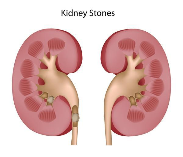 My husband has been having pain in his testicles and lower back on and off for 3 days. Sometimes his urine is a darkish color. Kidney stones?