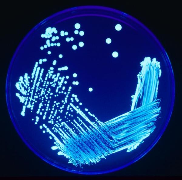 What is the size of legionella organisms?