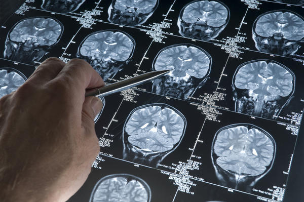Would a blood test show brain tumour?