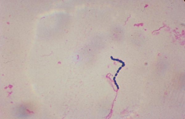 What streptococcus causes infective endocarditis?
