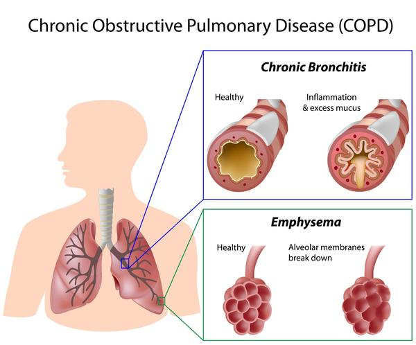 What is the first treatment in the hospital for people with COPD who can't breathe?