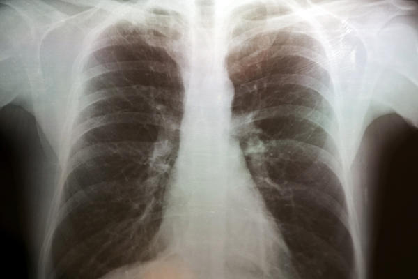 Is it a bad thing if I took 10 days of an antibiotic and my chest xray still shows pneumonia?