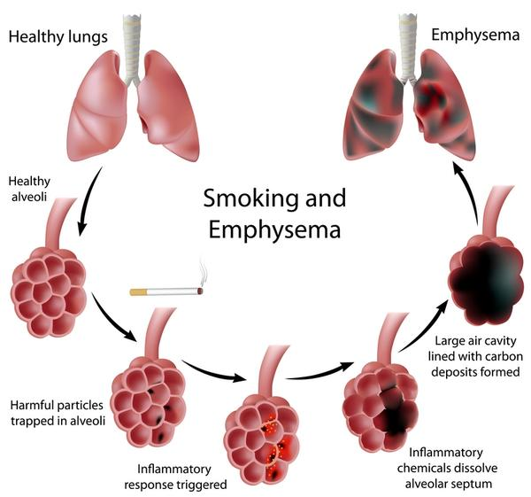 Could emphysema and COPD continue to progress after you stop smoking for 40 years?