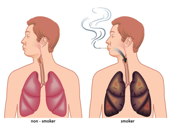 Wheezing after quitting smoking?