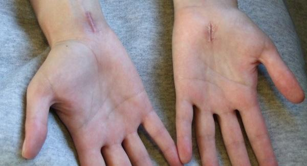 Is there an alternative to surgery to remove scar tissue?