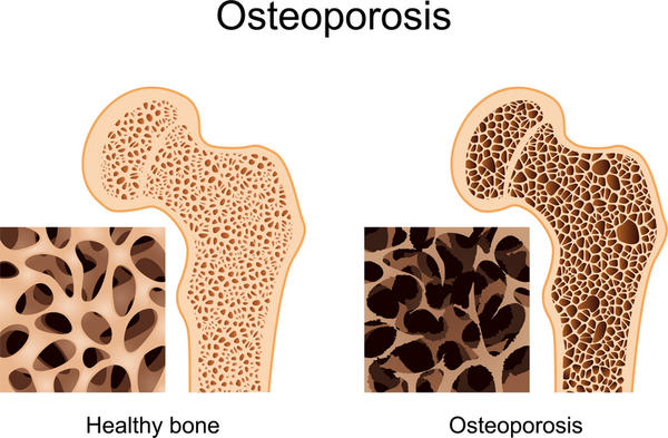 Describe the features of bone loss.?
