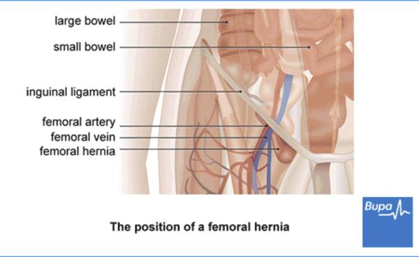 Can inguinal hernia obstruct bowel movement?
