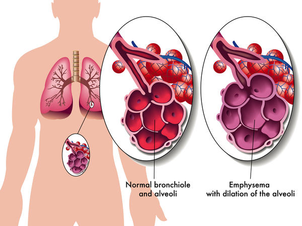 What does air trapping in the lungs mean?