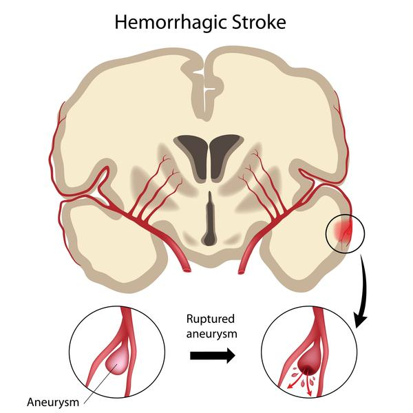 How does a stroke affect the nervous system?