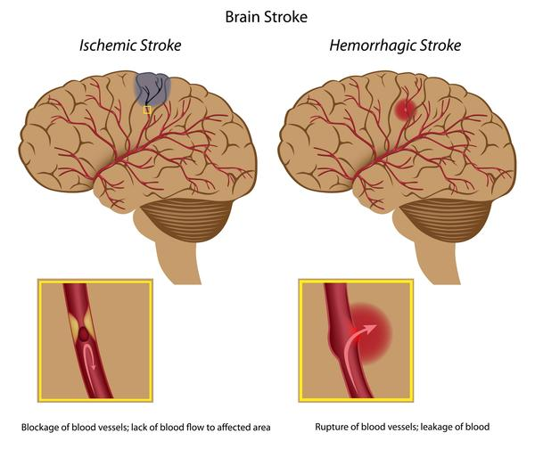 What is the difference between hemorrhage and embolic stroke?