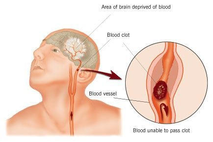 What are symptoms of a stroke caused by ischemia?
