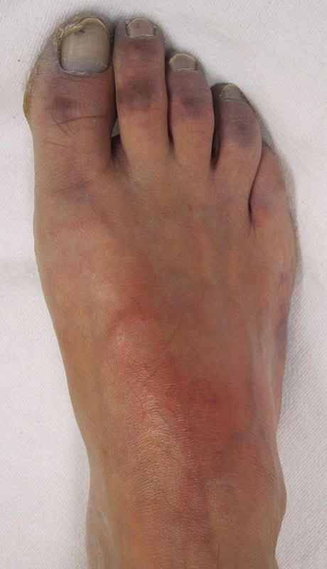 What causes swollen ankles with redness around the ankles and lower legs?