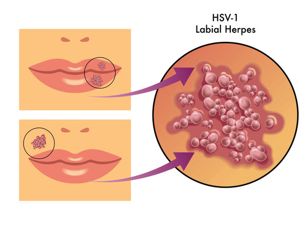 I have hsv-1 what is the chance that I could transfer the virus to my bf, when I have no cold sores present?