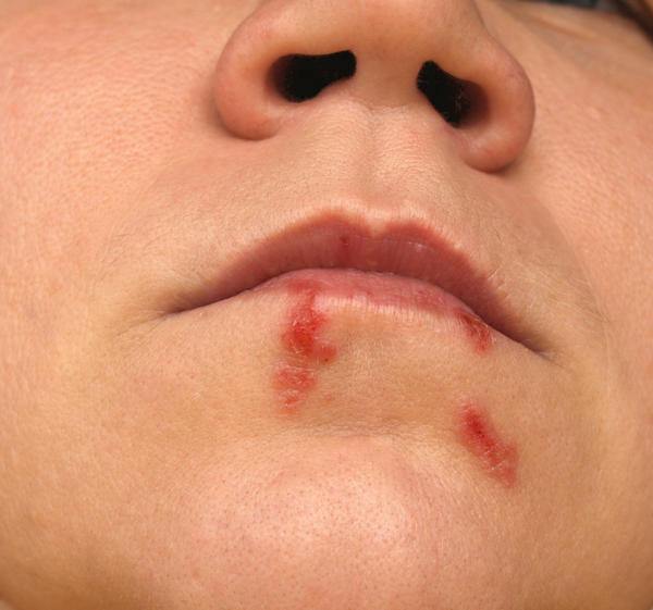 I have what looks like a cold sore feels like a pimple if i touch it like sore. And I am not breastfeeding and have never breasted. Just wondering if ?
