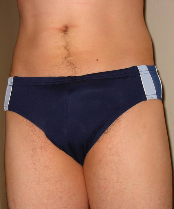 Dark colored spots not itchy on shaft of penis inner thighs and abdomen worried...?