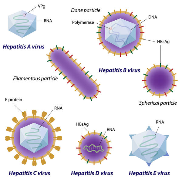What is typical cause for hepatitis c?